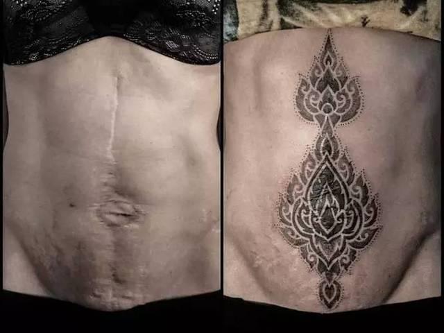 在伤疤上的纹身确实很美,但在遮盖前首先要知道这几点图片