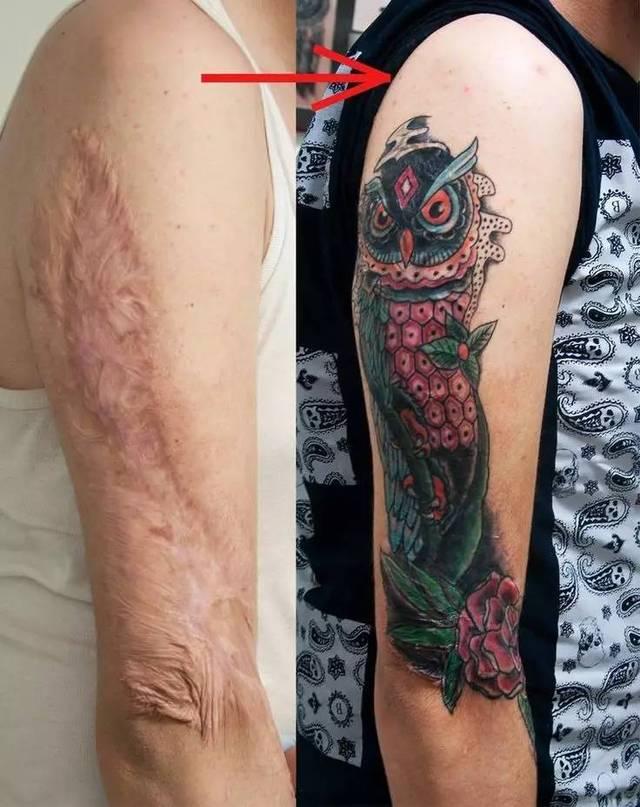 在伤疤上的纹身确实很美,但在遮盖前首先要知道这几点