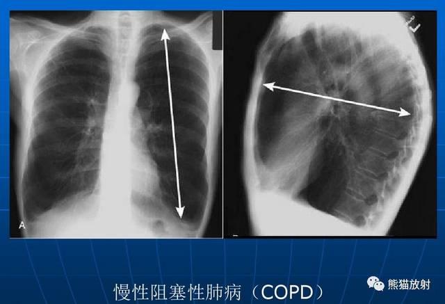 肺气肿x线图片