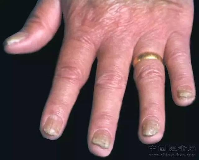 98.手指甲癣