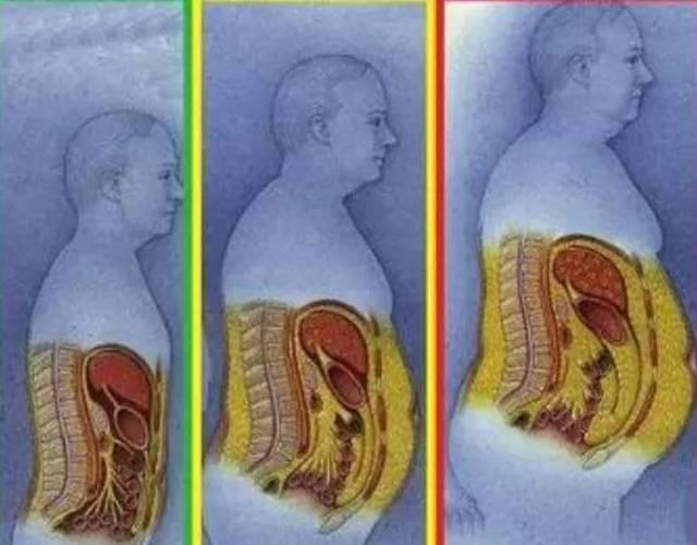 腹部连体危害那么多,所以想减掉大肚子,你该做塑身衣脂肪的好处图片