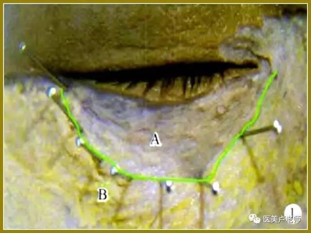 图1 绿线为眶缘,A区为无脂肪区,B区为有脂肪区,即额脂肪垫 眼轮匝肌眶隔部与眼轮匝肌眶部在眶骨内侧表面有自然的分界线,其体表投影对应于泪槽,该分界在内眦角垂线上宽度为(2。06O。15)mm,在鼻翼外缘垂线上宽度为(3.250.12)mm,眼轮匝肌眶隔部与眼轮匝肌眶部在距内眦角(16。560,51)mm处开始融合。  图2 0RLU为眶下眼轮匝肌支持韧带上层,ORLS为眶下眼轮匝肌支持韧带下层,A、B区为上、下层眼轮匝肌支持韧带间隙,B区有脂肪填充,即眼轮匝肌下脂肪垫。  图3 A为泪槽的水平长度(