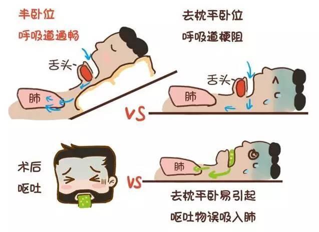 相比半卧位平卧位病人更容易发生反流误吸.图片