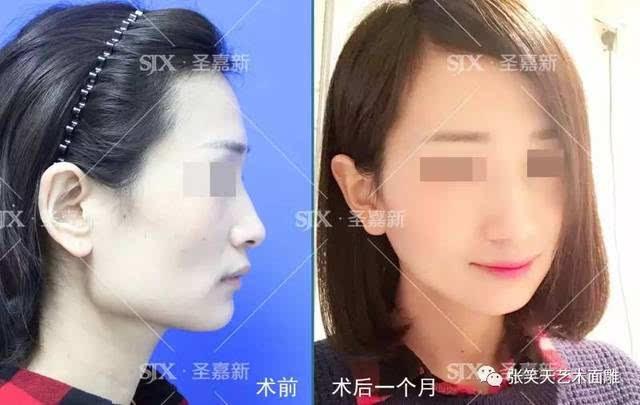 """比国字脸更大的""""梯形脸"""",应该怎么瘦脸?"""