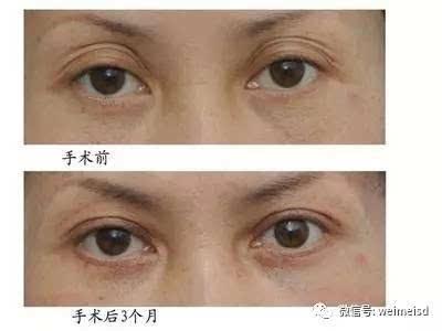 刚做出来的微创欧式眼双眼皮图片