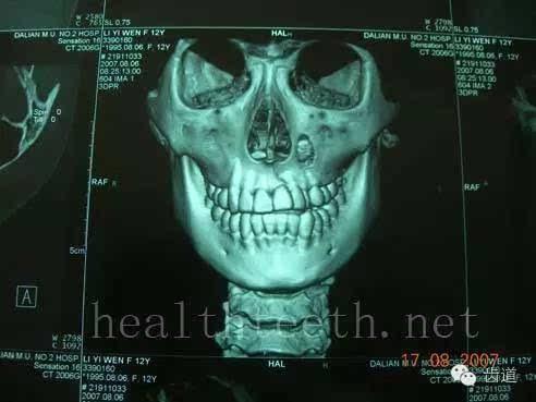 多图明了!通过图片让你的患者了解口腔常见疾病