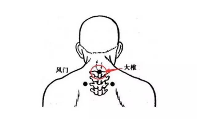 大椎血是人体哪个位置_大椎穴-督脉