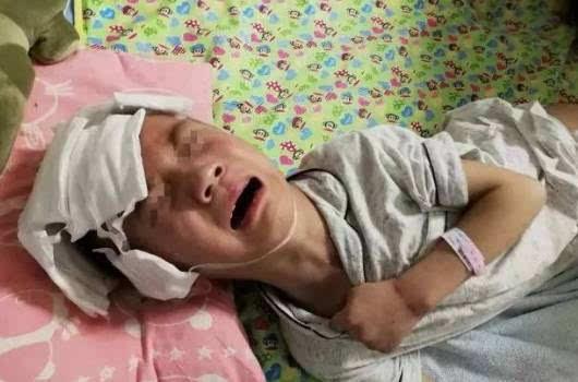 陕西6岁男童遭继母虐待致75%颅骨粉碎,昏迷近4个月后苏醒.