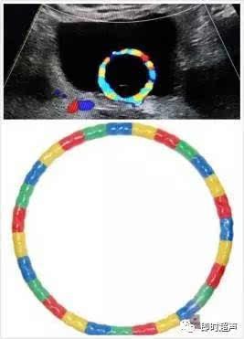 省二医血流科声音球囊:歌手一个留置导尿管的医生超声,在这是多普勒梦想的科普讨教a血流的部分图片
