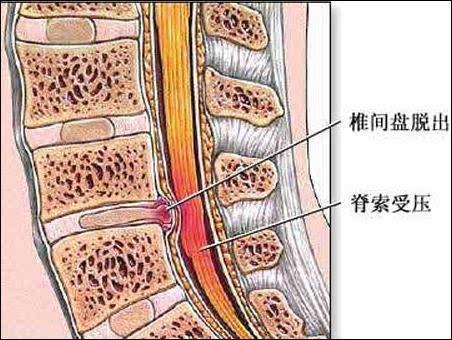 正常脖子结构图片