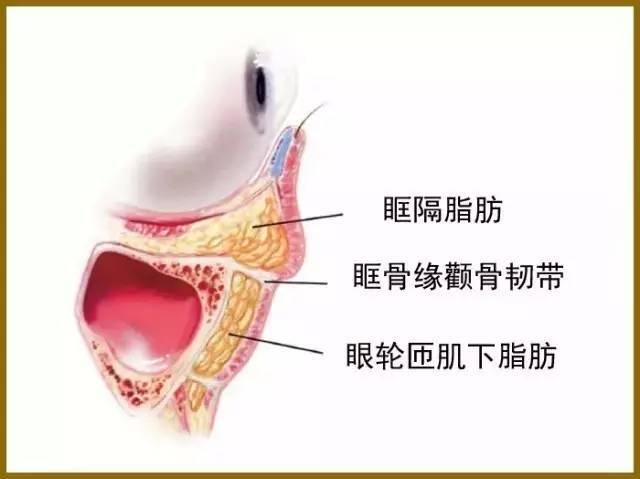 图18 下睑眶隔脂肪去除侧面观示意图