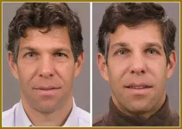 整外干货眼睑成形术与眉提升术概述