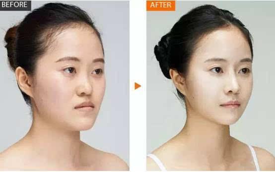 袁姗姗做了线雕隆鼻,效果比假体隆鼻还惊艳图片