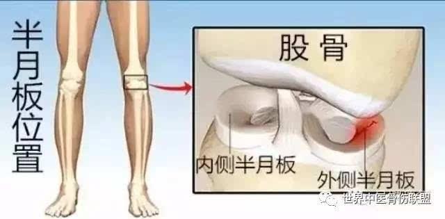 运动康复 半月板损伤 软骨的损伤