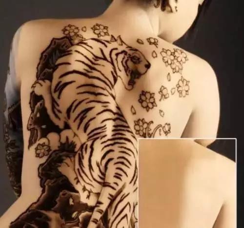 皮秒激光洗纹身靠谱吗?图片
