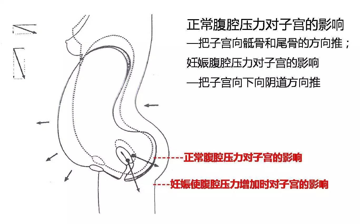 盆底肌训练器