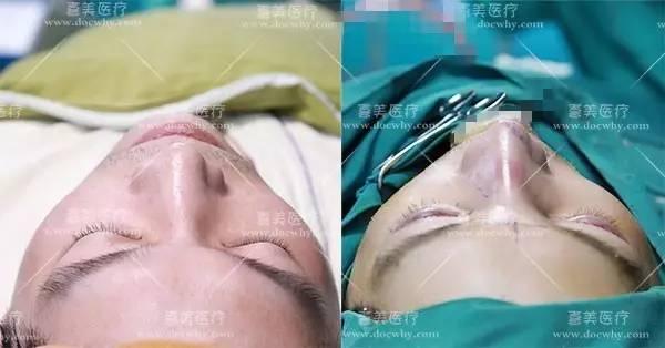 鼻伴有宽鼻怎么矫正 看看他的手术过程就知道啦