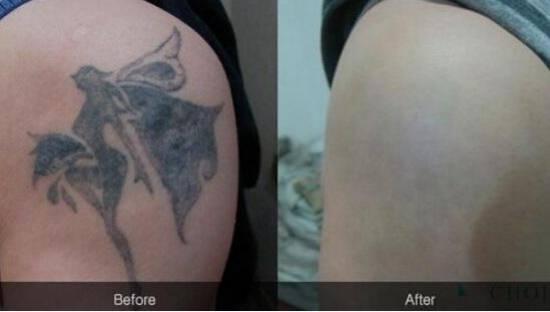 皮秒祛纹身对比图片