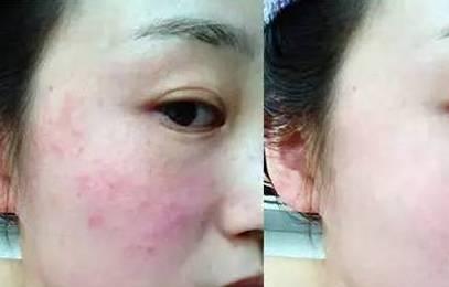 """【解惑】同心马女士因激素产品差点烂脸,别被短期的""""美丽""""迷惑图片"""