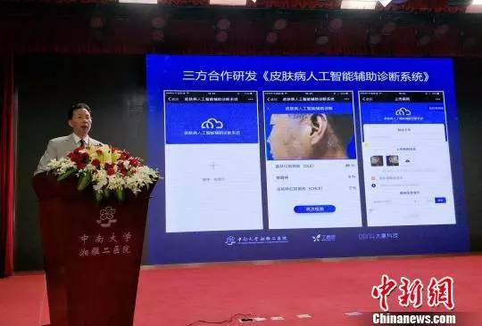 """中国首个皮肤病人工智能辅助诊断系统发布 可拍图"""""""