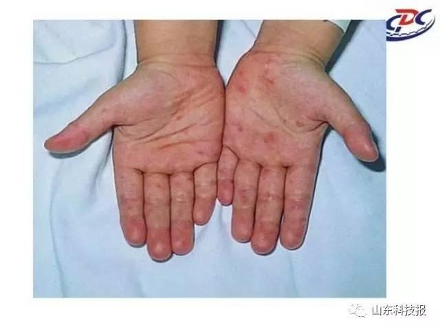 天气炎热,手足口病卷土重来 看看该如何远离这种恼人的疾病