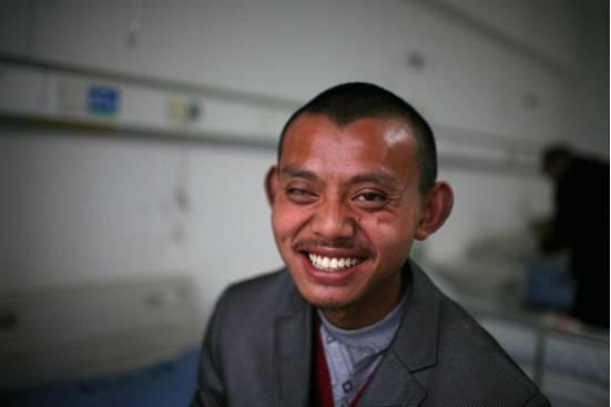 装假眼之后的图片_爱尔在身边 | 鄱阳单眼失明贫困青年接受救助进行义眼
