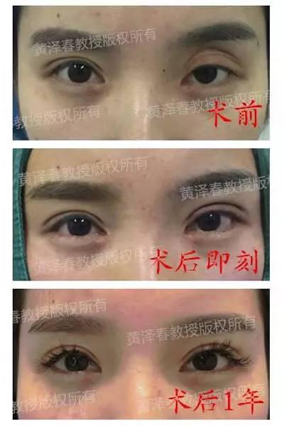 眼部皮肤五层组织结构图