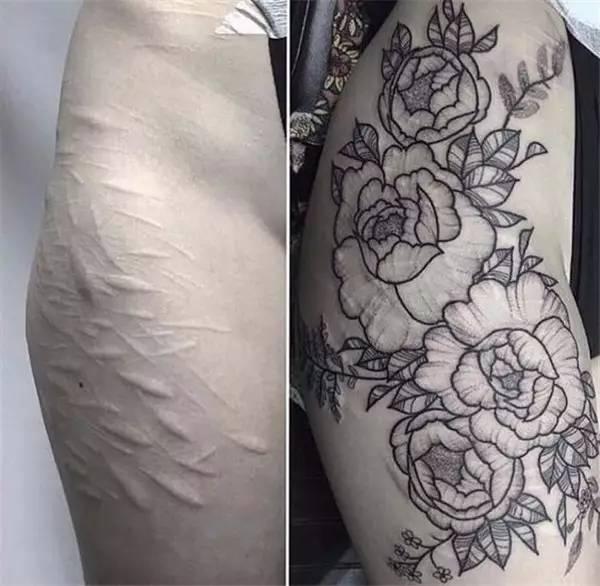 没有难看的伤疤,只有技术不佳的纹身师!