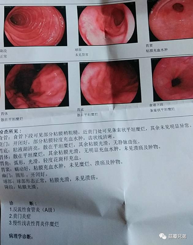 百性亚洲无码_【病例解答】不忘初**(浅表性胃炎伴糜烂,反流性食管