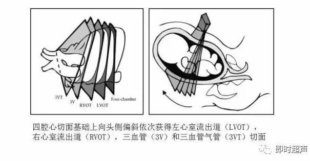 人体结构解剖图——素描石膏肌肉头像画法