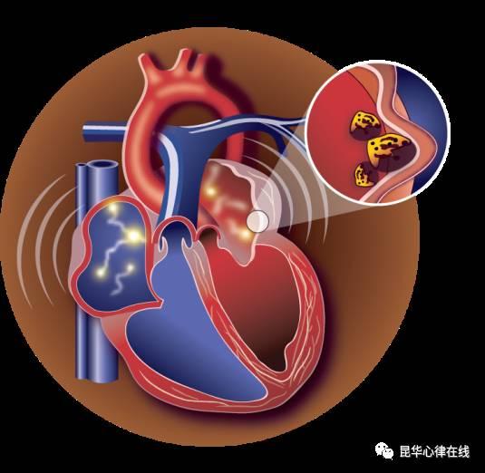 导管消融是一种微创介入治疗,并不是真正意义上的手术,通常只需要在局部麻醉的情况下进行。皮肤切口小,无需缝合。因此整个过程,创伤小,老年人可以很好的耐受。 5 什么是射频消融手术? 射频消融手术是一种微创导管技术,通过穿刺,将圆珠笔芯粗细的导管放置到心脏内,以射频的方式治疗心律失常。房颤导管射频消融治疗在全球已经发展了20多年,是很成熟和安全的手术。结合压力监测消融导管,可以使手术成功率达到88%。  手术过程中,患者需要平卧于手术台,避免移位。患者接受局部麻醉,意识清醒,如有不适,请及时告知医生。在消融过