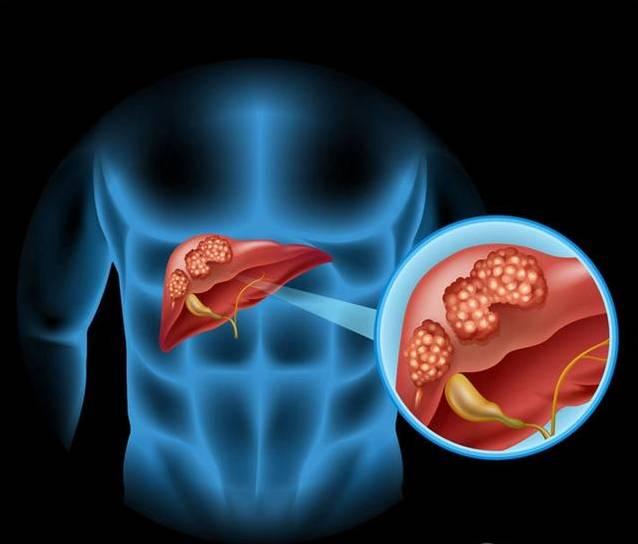 发现就是肝癌晚期?这7个早期症状都被你错过了!