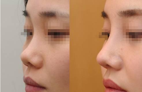 线雕鼻子-不开刀就能拥有小翘鼻,让颜值起飞图片
