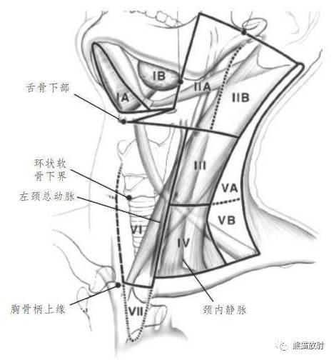 颈部淋巴结分区 精选资源