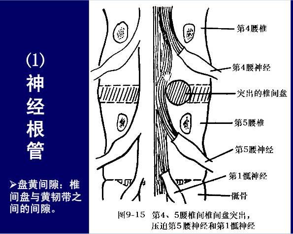 脊柱腰段的相关解剖(图解)