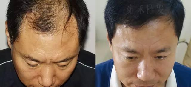 加密植发会不会影响头发健康?