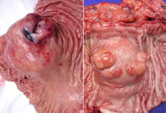 www510ppcom_[图文全解析]结直肠癌预防,诊断治疗知识一览无余(上)