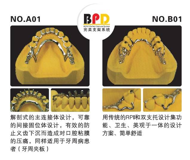 口腔可摘局部义齿支架设计大全图片