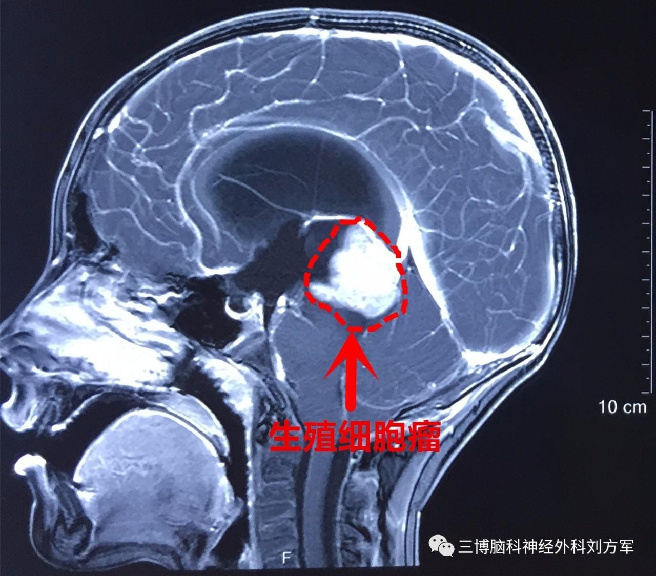 裂体生殖_右侧顶枕开颅松果体区生殖细胞瘤切除术