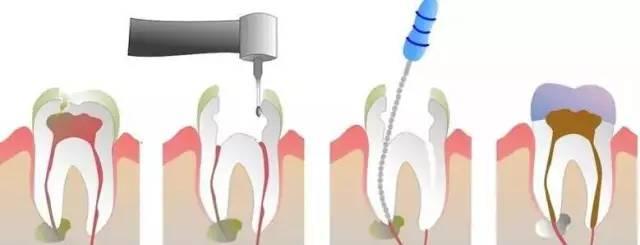 留住牙齿最后的机会——根管治疗,你抓住了吗?