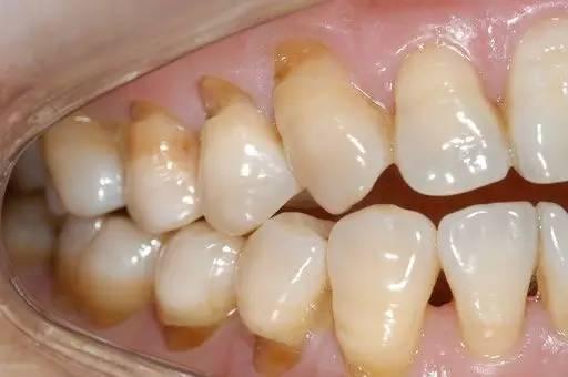 每天不要再这样刷牙了!你的牙齿快被刷断了!