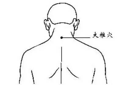 大椎血是人体哪个位置_位置:正坐低头大椎穴 ,该穴位于人体的颈部下端,第七颈椎棘突下凹陷