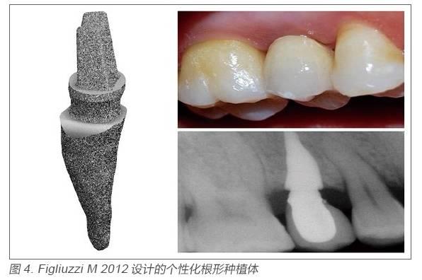 3D 打印技术在口腔医学应用的国内外现状和趋势