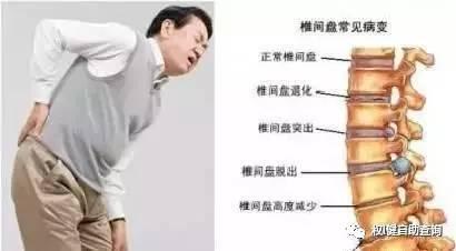在权l健 腰椎间盘突出 颈椎病 骨质增生这样调理,效果令人难以置信