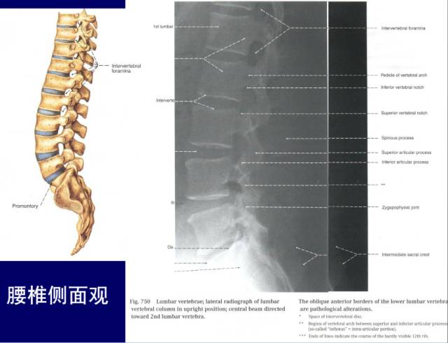 脊柱腰段的相关解剖(图解),马上分享!