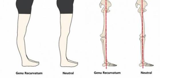 怎么矫正弓形腿?   ①小腿放松:   除了假胯宽之外,还有一种就是