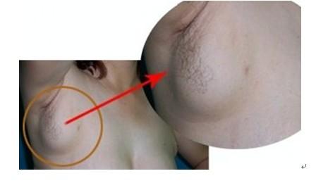 腋下淋巴结堵塞直接导致乳腺癌