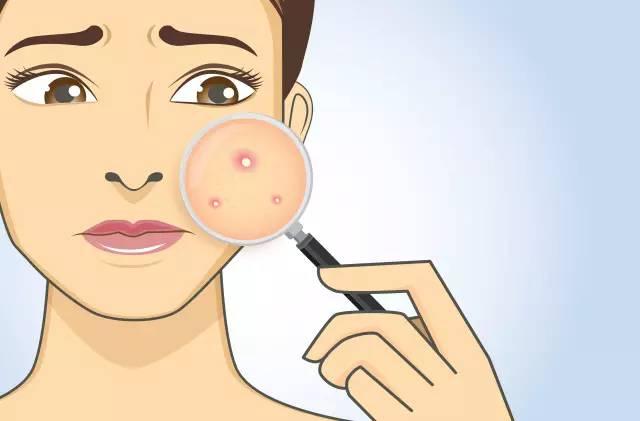 外国人阴道囹oh_痘痘肌肤适用产品推荐 oh,no,遇见痘痘,怎么破?