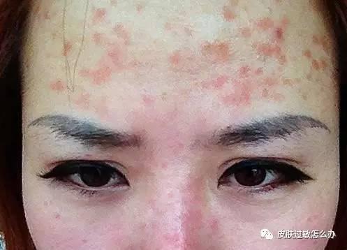 治螨虫过敏_螨虫皮肤过敏的治疗-螨虫怎么治疗?螨虫过敏症状有哪些
