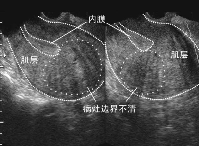 盆腔积液啥意思_子宫肌层可见散在血流信号是啥意思